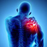 borsite alla spalla | Fisiolab Riabilitazione